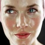 顔のテカリにレーザー治療は必要か?副作用などはある?