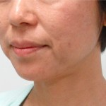 顔のたるみは背筋や腹筋、ストレッチなどが効くのか?