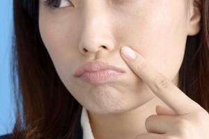 鼻の下 ニキビ