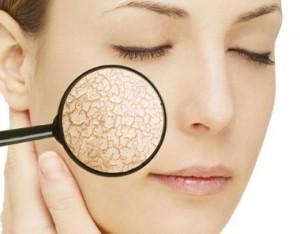 冬 顔 角質 原因 対策