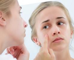 ニキビ 皮膚科 美容皮膚科 目的に合わせる