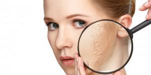 乾燥肌 原因 女性ホルモン 乱れ コラーゲン ヒアルロン酸 不足