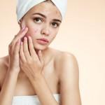 洗顔のやりすぎはニキビを悪化させる原因になる?