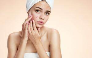 ニキビ 悪化 原因 洗顔のやりすぎ 乾燥