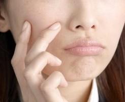 ニキビ 膿 原因 炎症