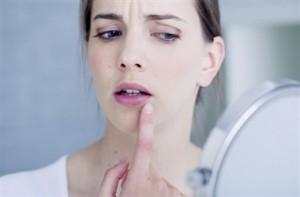 唇の荒れ 原因 乾燥 舐める