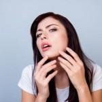 ニキビが顎にできる原因は?なぜできるのか?